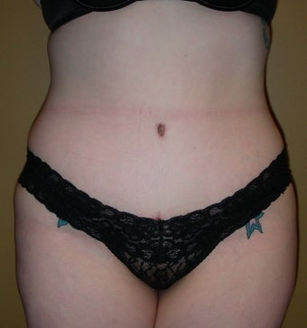 abdominoplasty after 237383