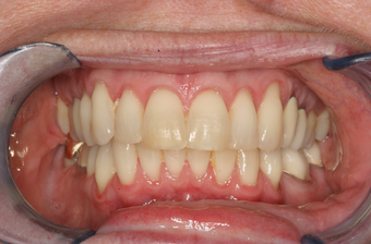 Adult Overbite, Nonextraction (braces) after 296520