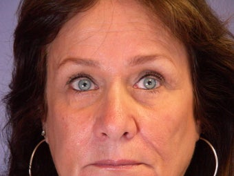 Brow Lift  after 306415