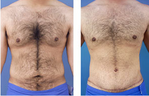 Tummy tuck on a male age 24 before 6728
