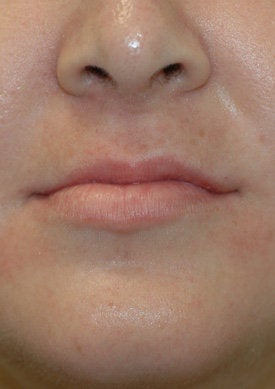 Restylane lip injections before 93353