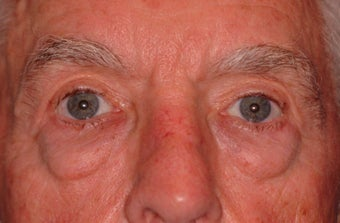 Extended lower lid blepharoplasty before 480035