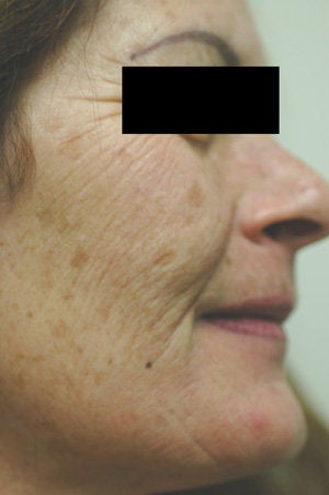 Photofacial before 151338