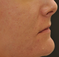 Acne Scarring after 426029