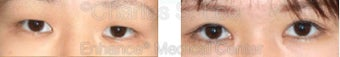 Blepharoplasty before 427698