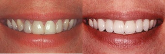 Porcelain Veneers before 313052