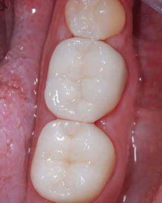 Mercury fillings replaced by white tooth colored fillings after 625254