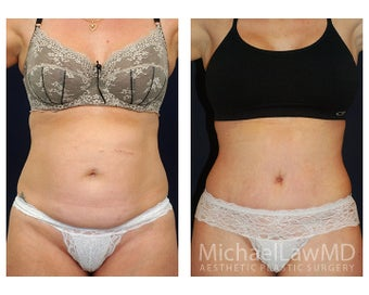 Abdominoplasty - Tummy Tuck before 396091