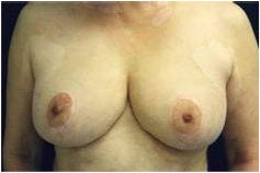 Breast Reduction after 205099