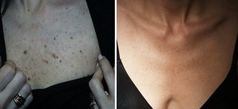 Upper chest freckles and spots removed by laser before 6314