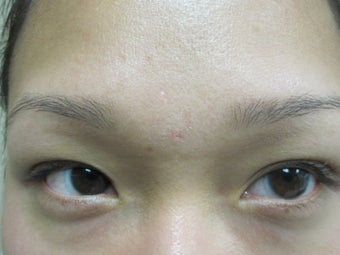 Sebaceous Hyperplasia Before & After Treatments after 625409