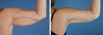 Arm Lift (Brachioplasty) before 303695