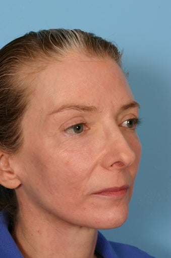 Fraxel Laser treatment after 88693
