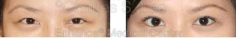 Blepharoplasty before 427712