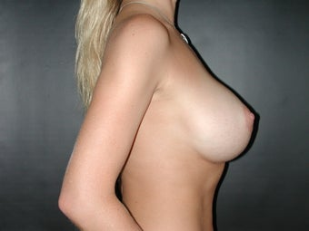 Breast Augmentation after 110083