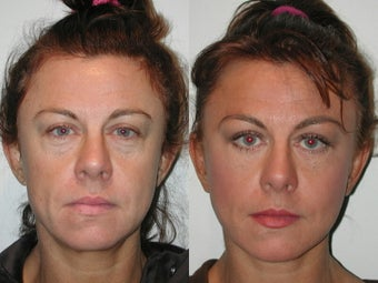 Minifacelift  Blepharoplasty after 137755