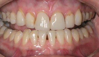 Replacement Porcelain Veneers before 368025