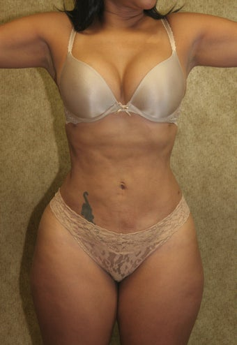 liposuction after 583324