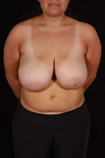 Breast Reduction before 130610