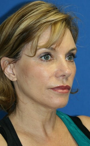 Facelift with Extended Necklift, Lateral Browlift, Fat Transfer, and Skin Pinch 540338