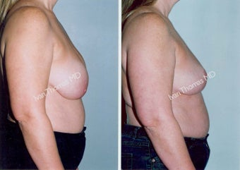 Implant removal and Breast lift before 243649