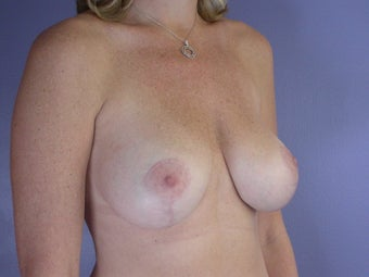 Breast lift with implants after 321668