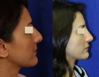 Revision Rhinoplasty before 127038
