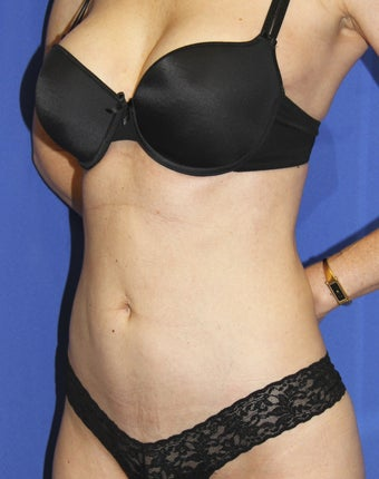Laser-assisted Liposuction 364499