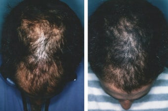 Medical treatment for hair loss (no surgery) before 369181