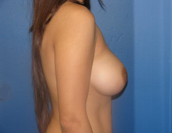 Breast Augmentation 575286