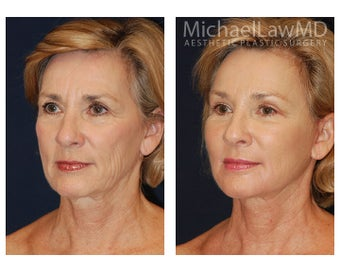 Facial Rejuvenation before 395154