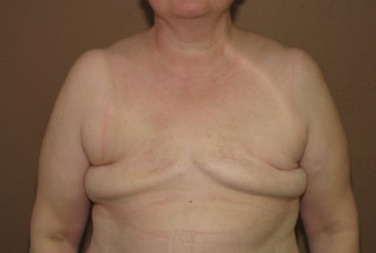 Bilateral reconstruction of the breast with expanders/implants before 557774