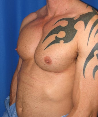 Pec Implants  420119