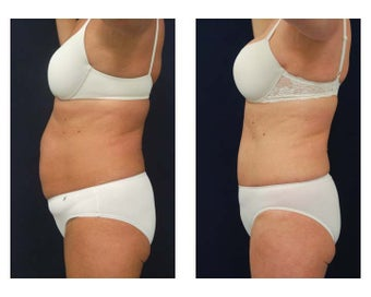 Abdominoplasty - Tummy Tuck 396160