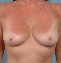 Breast Augmentation before 479480