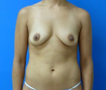 Saline Breast Augmentation before 575183