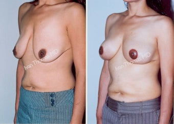 Mastopexy-Breast Lift before 243708