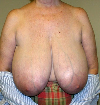 Breast Reduction before 296025