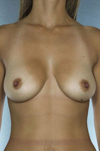Breast Lift before 318729