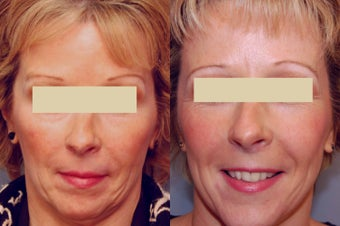 Sculptra treatments after 125334