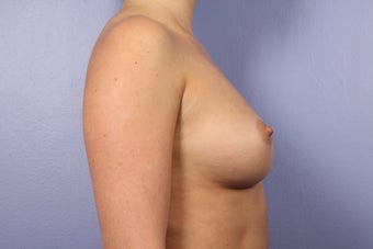 Breast Augmentation before 338712