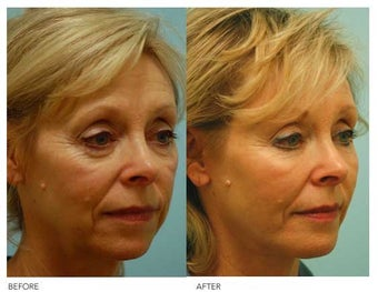 Fat Transfer/Fat Grafting/Facial Rejuvenation before 136354