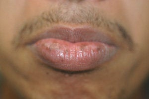 Brown Spots on the Lips before 179156