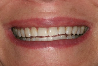 ZOOM whitening after 343719