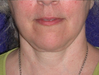 Necklift after 208456