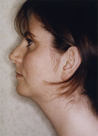 Neck Liposuction 628887