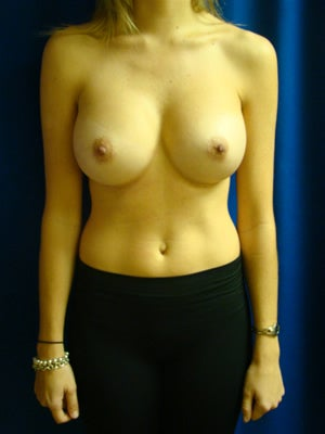 Breast Augmentation Surgery after 141024