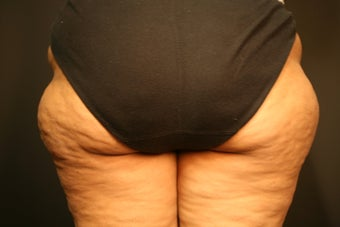 Cellulite Treatment before 602206