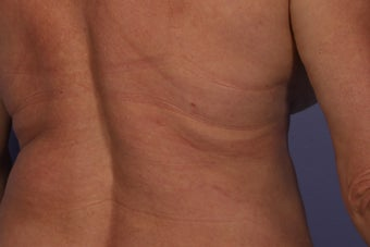CoolSculpting to Bra/Back Rolls after 429657