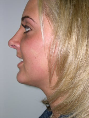 Rhinoplasty, chin implant, neck liposuction after 237599